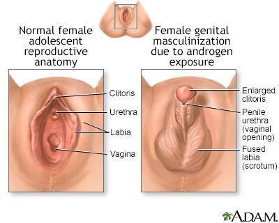 Clitoris after male hormone