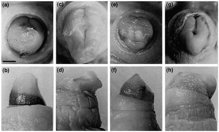 Slug reccomend Clitoris after male hormone