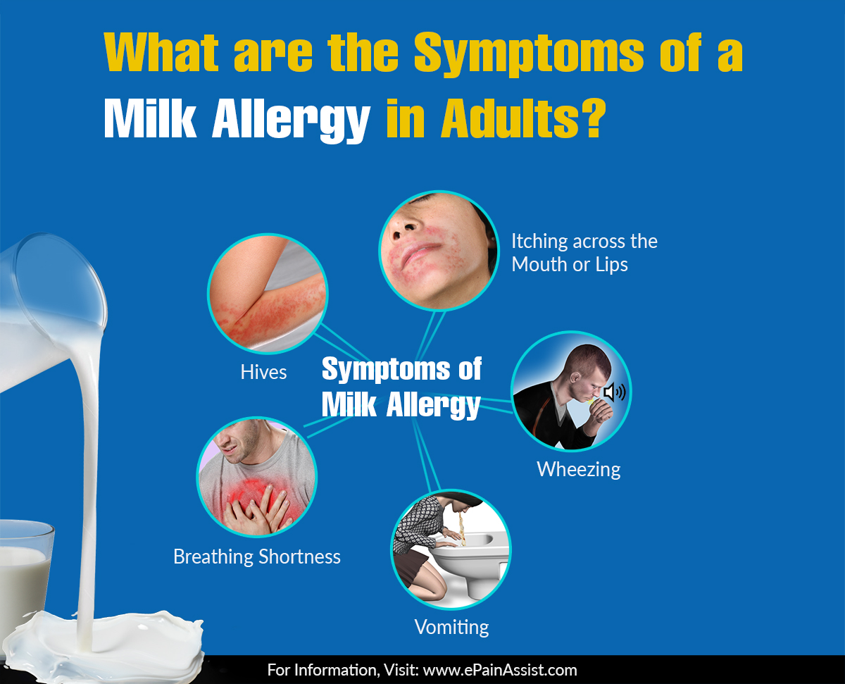 Funnel C. reccomend Adult milk allergy symptoms