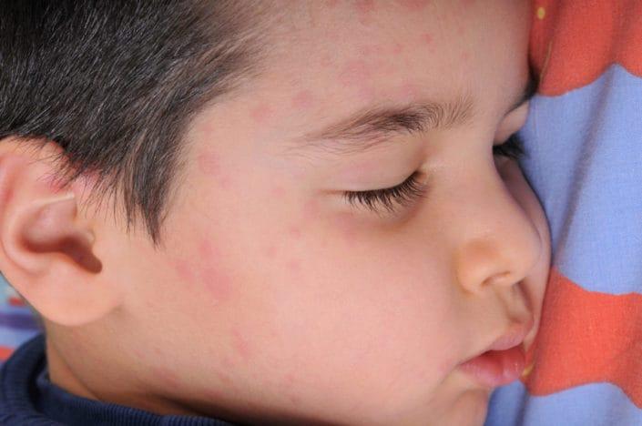Facial rash hives