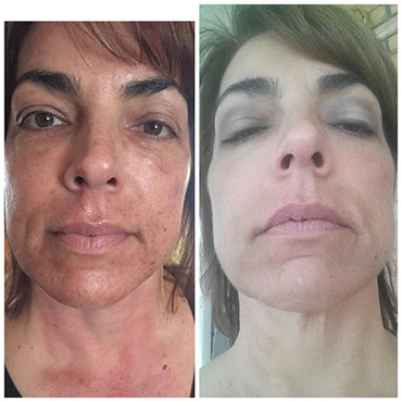 Facial rejuvination in las cruces