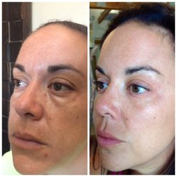 best of Cruces las Facial in rejuvination