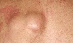 Puss filled pimple around anus